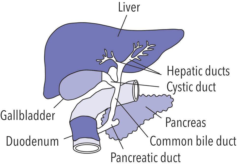 treatment for gallstones