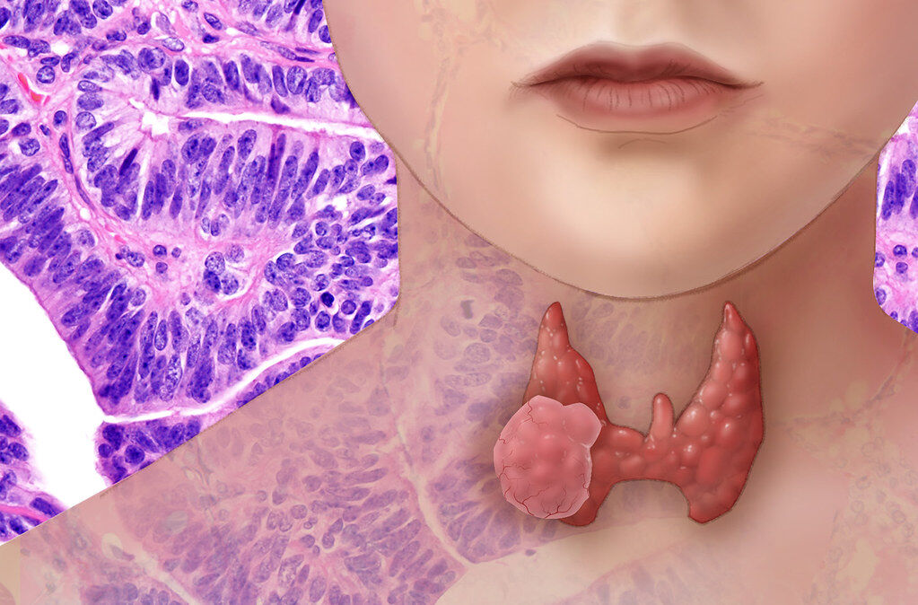 Graves disease Hyperthyroidism Autoimmune thyroid disease Solutions using Functional Medicine